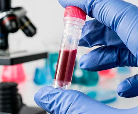 Новый метод дает надежду в борьбе против рака крови