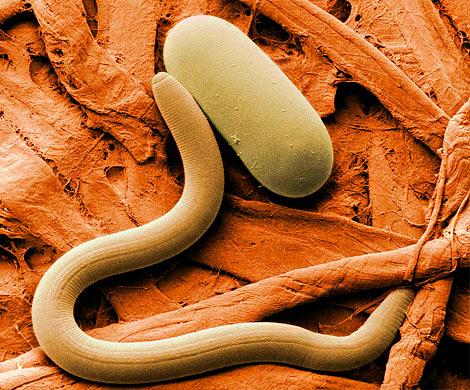 Живой ишевелится: ученые скрестили мозг червя иробота— результат шокировал