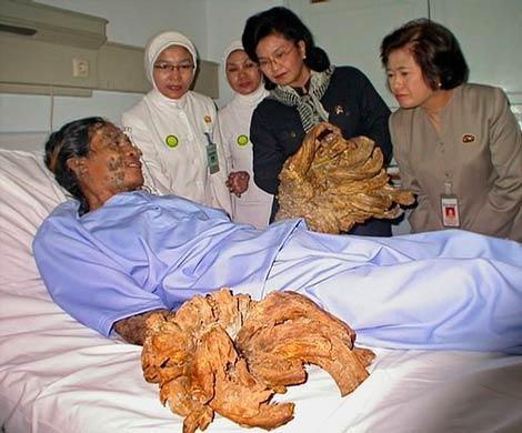 Редкое заболевание превращает жителя Индонезии в дерево, фото pchelamaja.mybb.ru