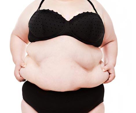 Ожирение увеличивает риск появления рака— Ученые