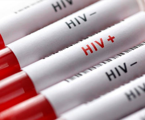 В 13 регионах России более 1% населения заражено ВИЧ