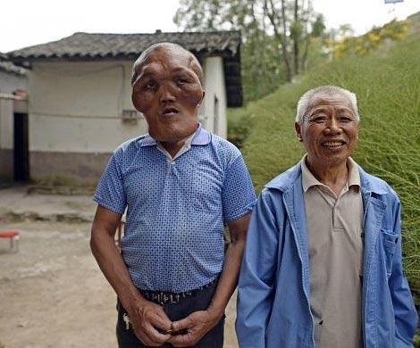 В КНР отыскали человека сголовой инопланетянина