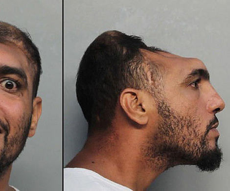 Жителя Америки «без мозга» арестовали запокушение наубийство