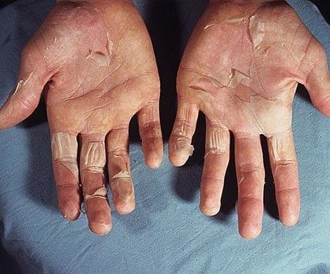 v-velikobritaniyu-vernulis-bolezni-vikto