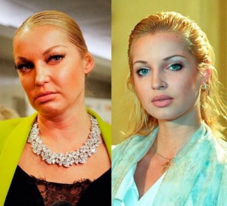 «Это все алкоголь»: Волочкова ужаснула фанатов постаревшей внешностью